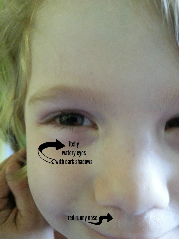 Sister Allergy Face