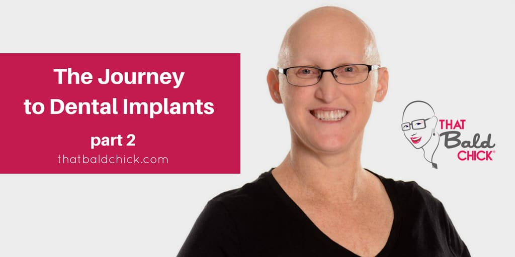 The Journey to Dental Implants - Part 2 at thatbaldchick.com
