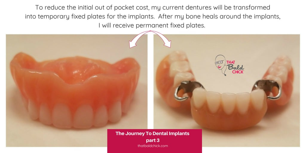The journey to dental implants part 3