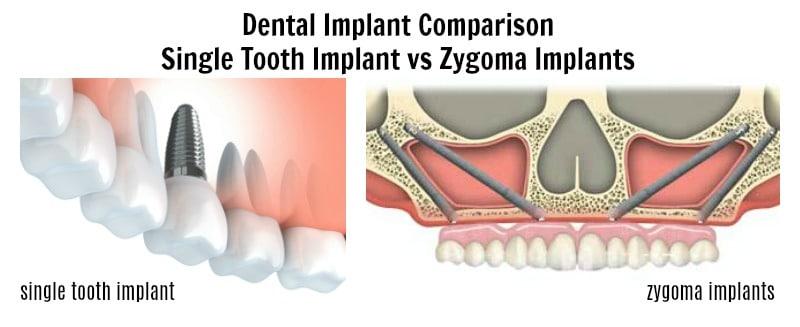 dental implant comparison