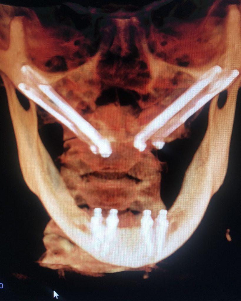 Virginia Higgins dental implants x ray