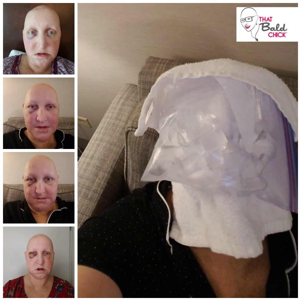 The Journey to Dental Implants Part 4 - That Bald Chick®