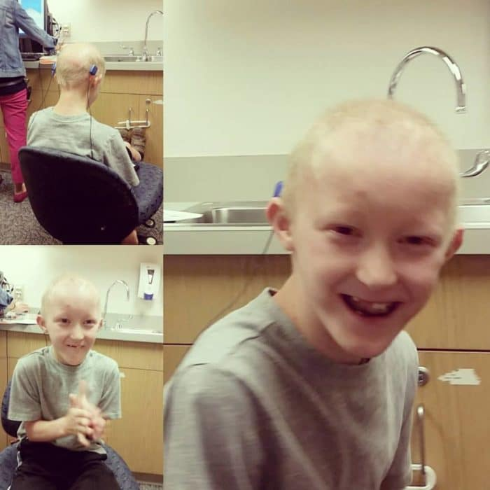 Receiving his BAHA hearing aids